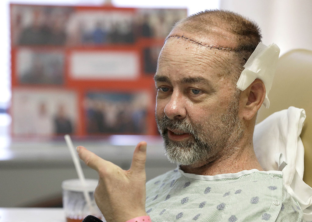 In this photo taken on Wednesday, June 3, 2015, James Boysen is interviewed in his hospital bed at Houston Methodist Hospital in Houston. Texas doctors say he received the world's first skull and scalp transplant from a human donor to help heal a large head wound from cancer treatment. (AP Photo/Pat Sullivan)
